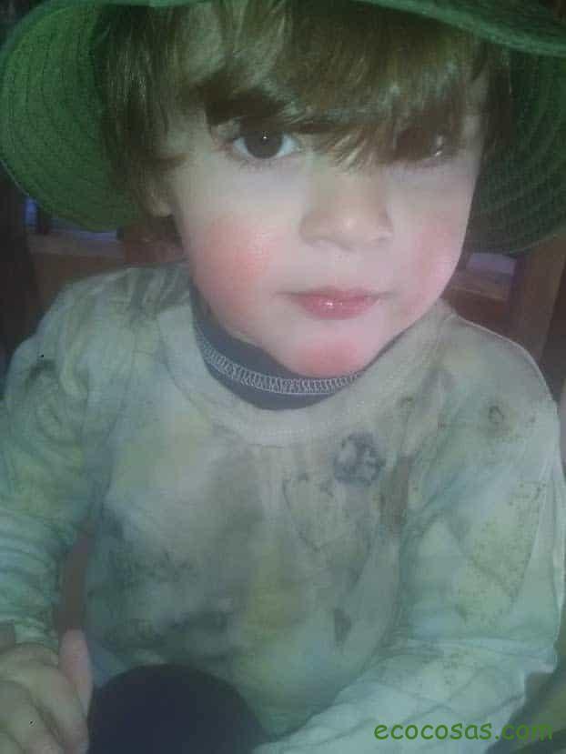 alergia al niquel