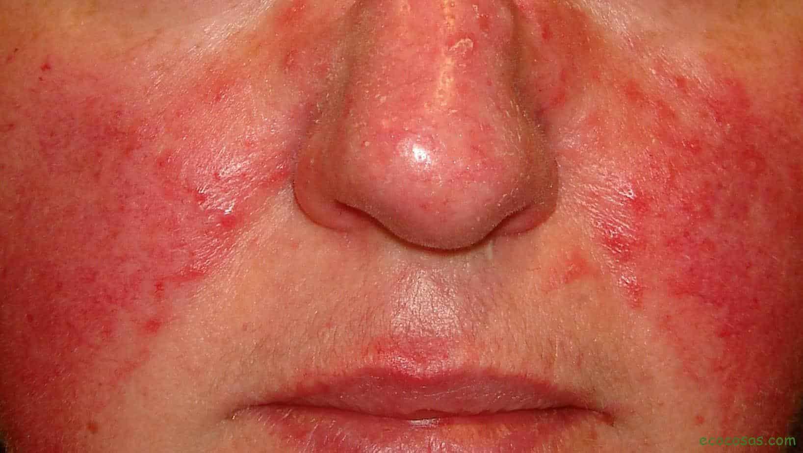 Rosácea Tratamiento Natural Para Esta Afección De La Piel