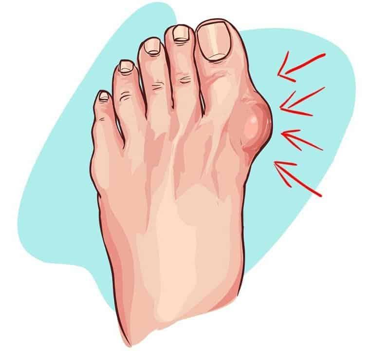 acido urico que es y sintomas