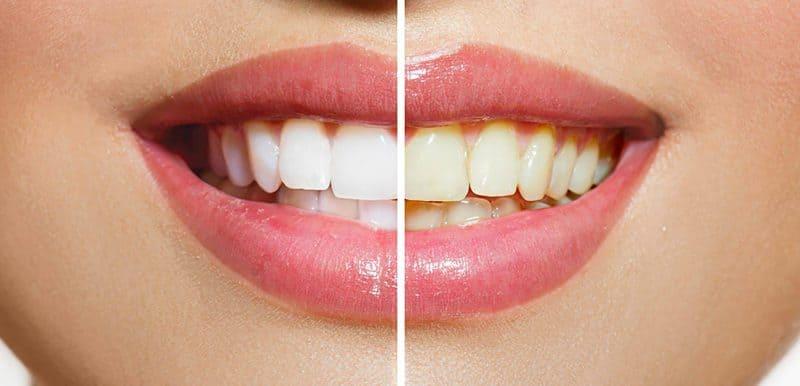 como blanquear los dientes en casa