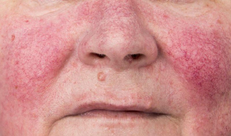 Rinofima antes y despues de adelgazar