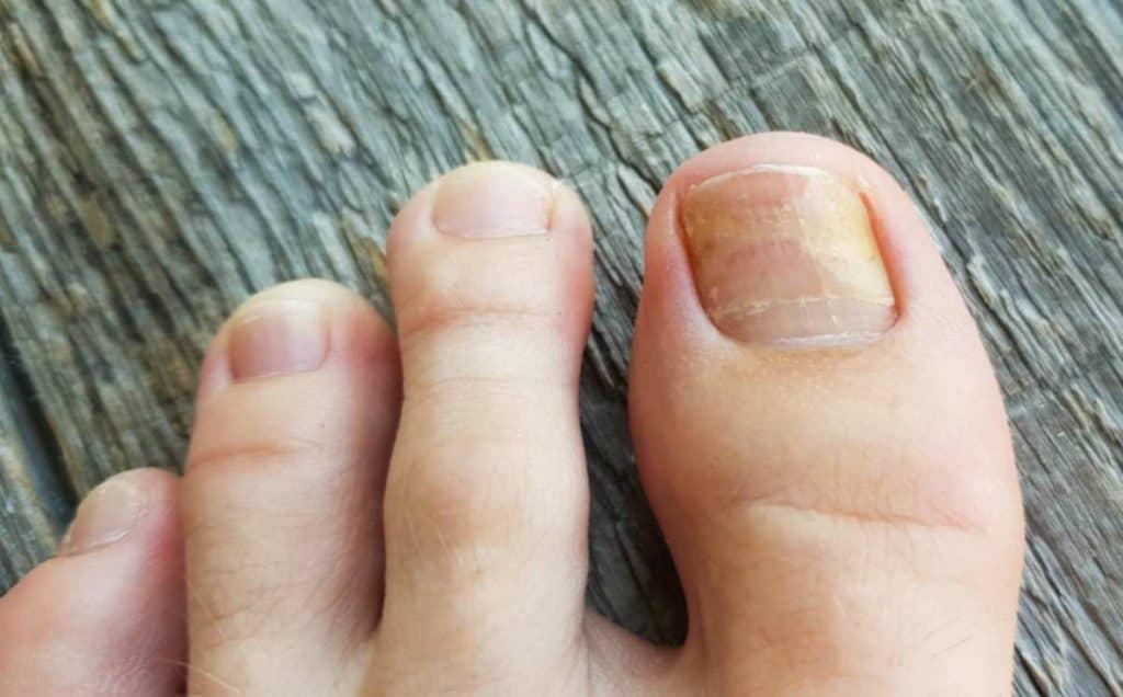 hongos en las uñas de los pies como eliminarlos