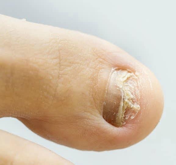 remedios caseros para los hongos en las uñas