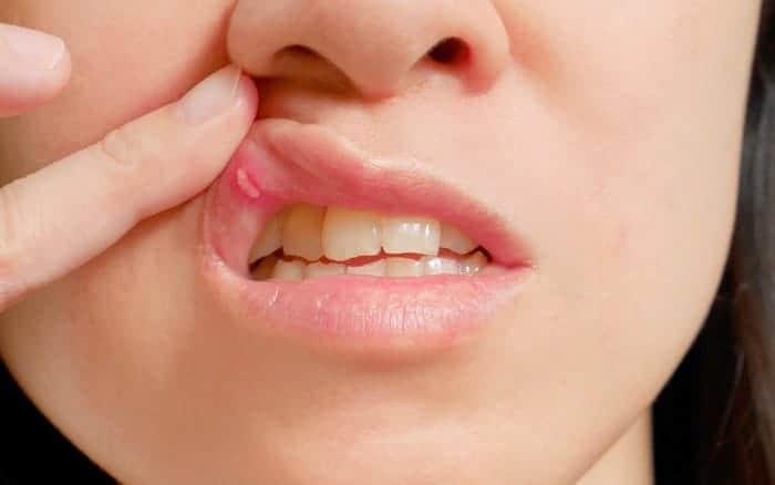 llagas en la boca remedios caseros